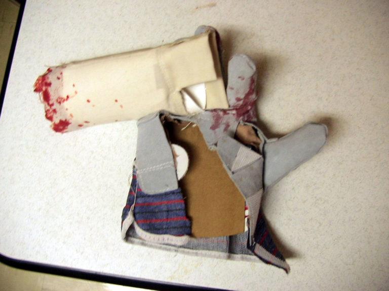 Больная рука — зло, предостережение от несчастного случая, сломанная — несчастье, потерять руку — смерть брата или близкого друга ссора.